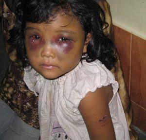 http://efendisurya.files.wordpress.com/2011/03/tragis-bocah-disiksa-ayah-sejak-usia-4-tahun4.jpg?w=595